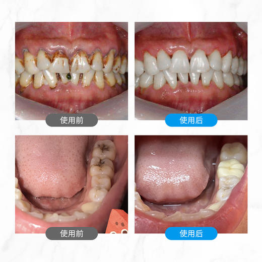 【买2送1 买3送2】白大师修护牙膏   修补牙釉质   平衡酸碱  除口臭 100g/盒 商品图5